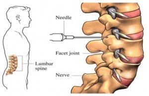 arizona back pain ablation