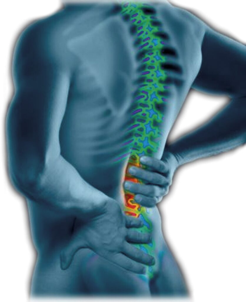 natural back remedies
