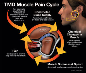 What Causes TMD