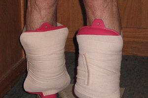 Scottsdale sports rehab shin splints