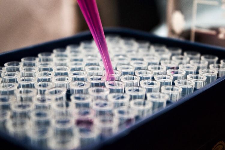 best leaky gut lab test