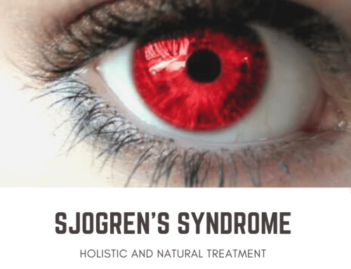 Natural Treatments For Sjogren's Syndrome Part 3