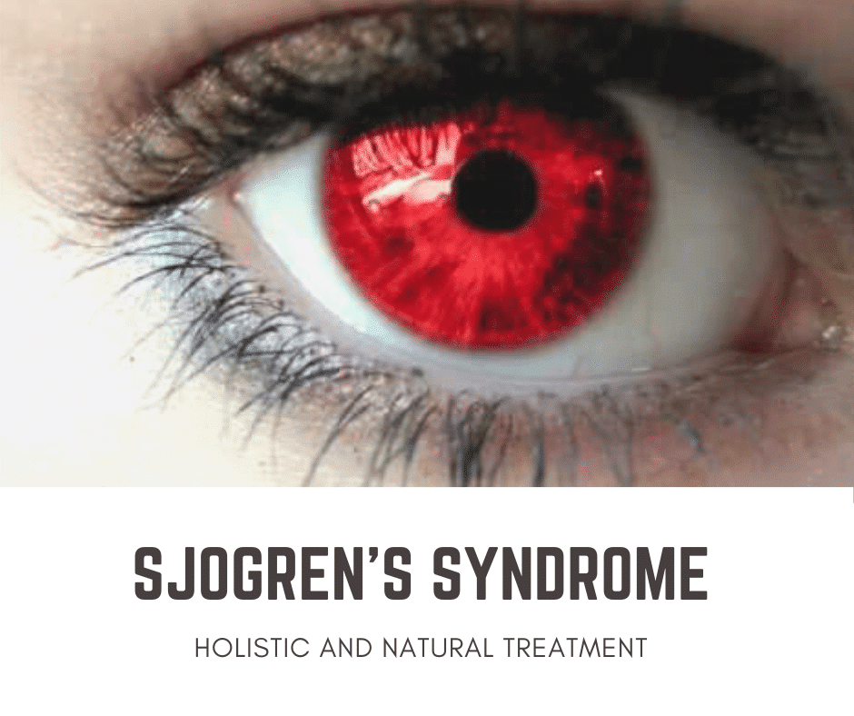 Arizona Sjogrens Natural Treatment Part 3